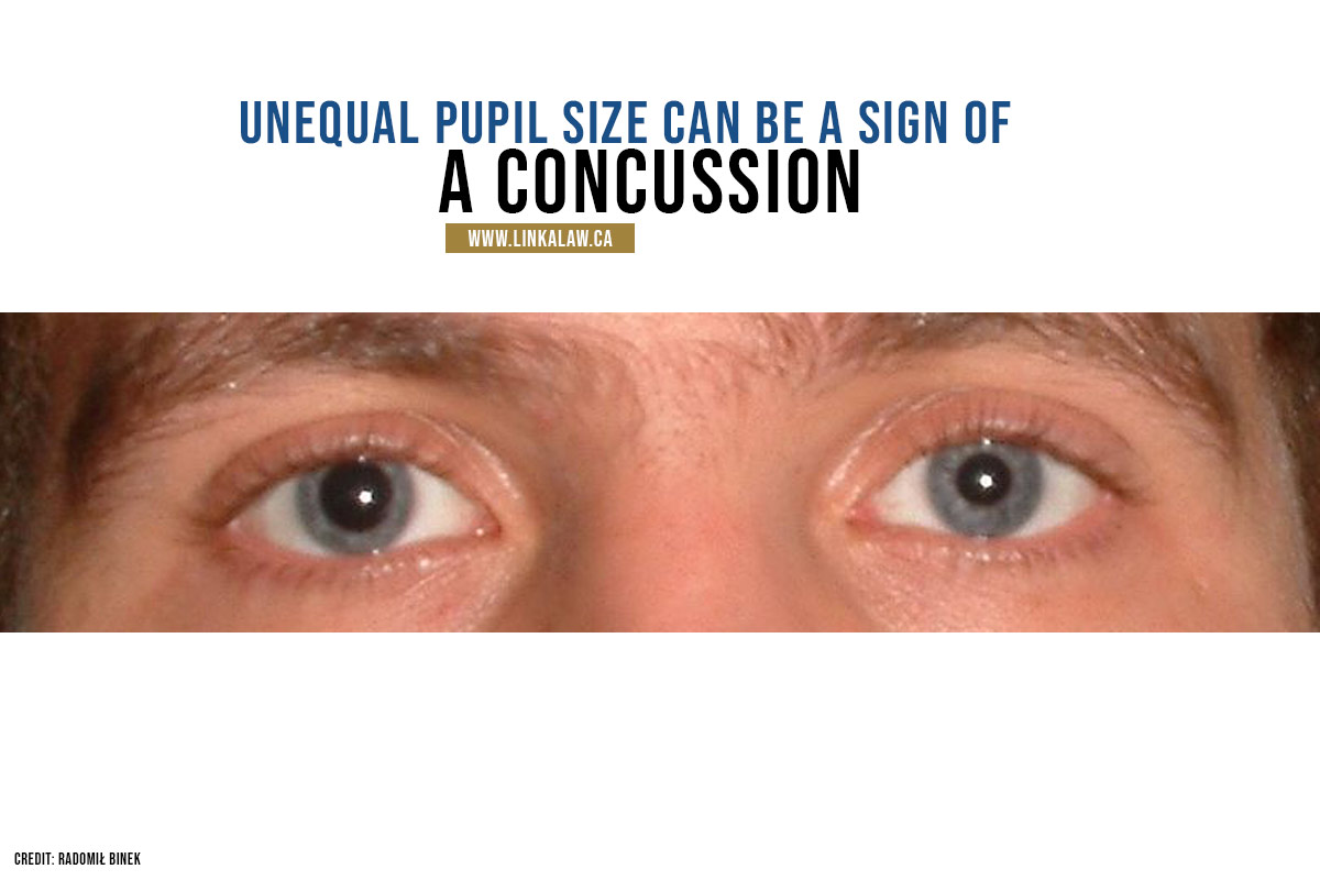 Unequal pupil size can be a sign of a concussion